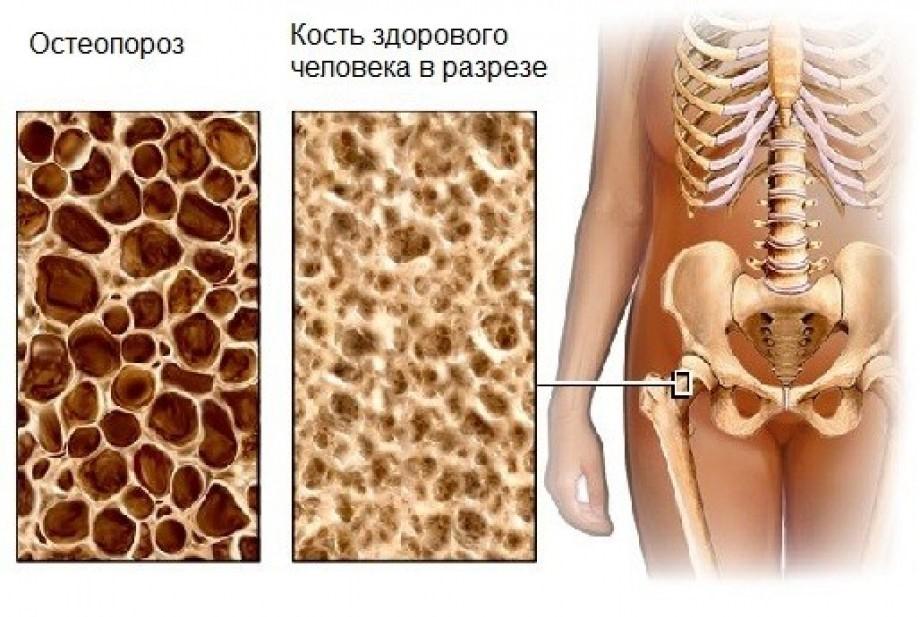 кости позвоночных недостатки по сравнению с другими